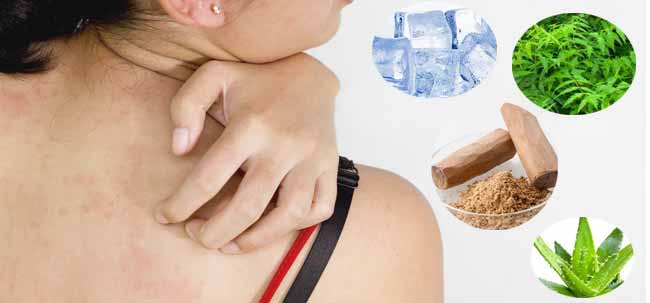 10 Home Remedies to Treat the Prickly Heat Rash