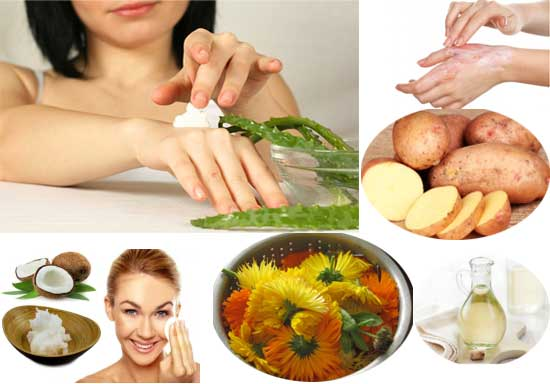 10 Top Home Remedies For Soothing A Burn On The Skin