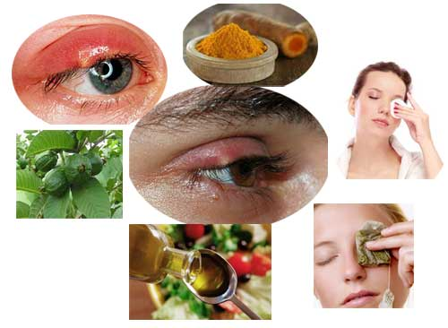 6 Home Remedies For Stye On Upper Eyelid Home Health Beauty Tips