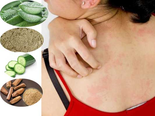 7 Natural Home Remedies to Treat Heat Bumps