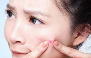 Best Medicine for Blind Pimples