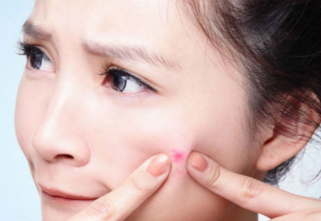 Natural and Best Medicine for Blind Pimples