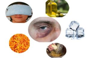 How to Get Gid of Black Eye Fast