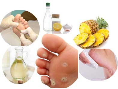 Home Remedies for Corns on Feet that Works