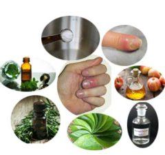 How To Treat Paronychia
