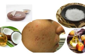 How to Get Rid of Pimple Marks Naturally