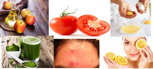 How to Get Rid of Acne on Forehead