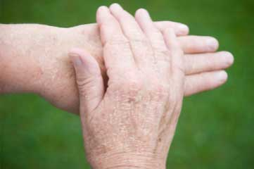 How to Get Rid of Dry Hands in Winters