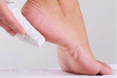 Preventive measures to keep corns on the feet at bay