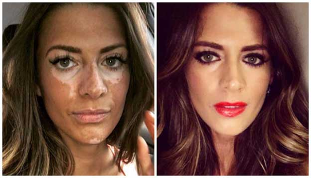 What Is Vitiligo Signs Causes Treatment And Home