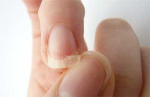 Brittle and Cracked Nails Indicate