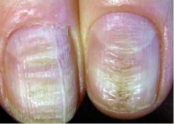Horizontal Ridges on Nails Indicate