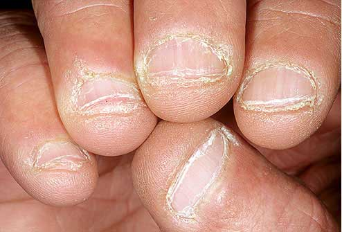 Gnawed Nails Indicate