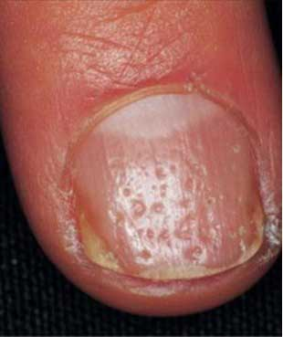Pitted Nails Indicate