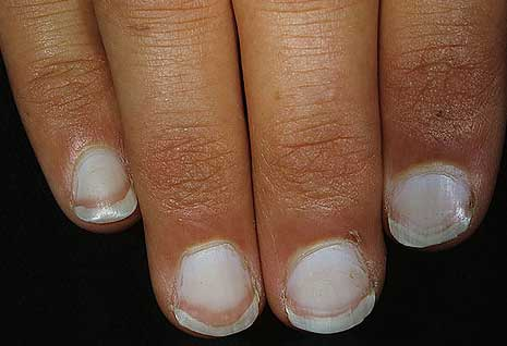 Totally White Nails Indicate