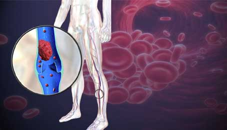 blood clot is in leg,