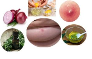 How To Reduce For Breast Boil