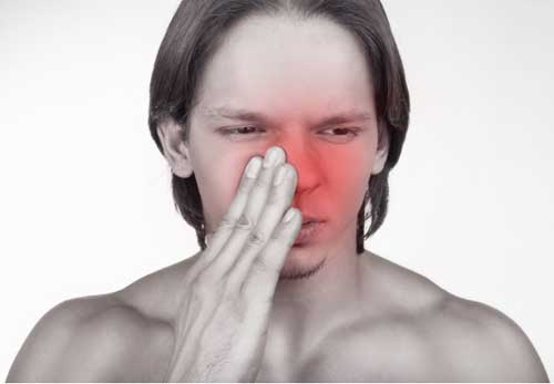 Cause of Sinusitis