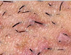 Black vagina lips, asian pop hair