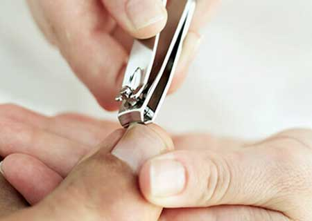 What is Ingrown Nails