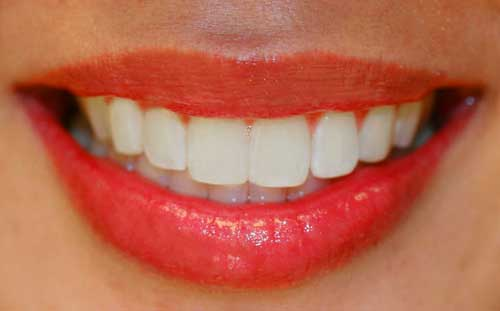 Get White Sparking Teeth Naturally at Home
