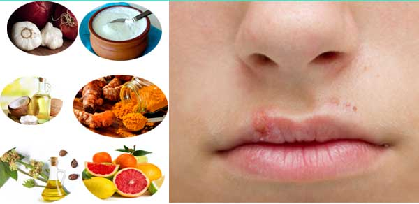 Effective Home Remedies for Lip Infections