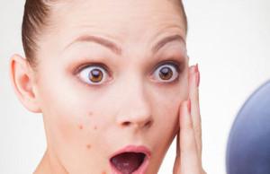 Fade Away Acne Scars