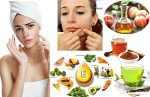 Home Remedies for Teenage Pimples