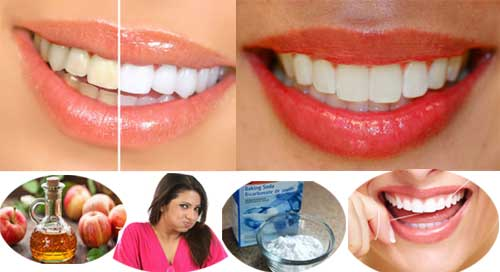 Home Remedies to Bring Sparkle Whiten Teeth at Home