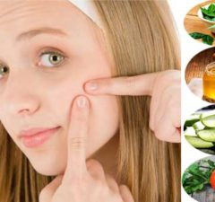 Home Remedies To Get Rid Of Blemishes Faster