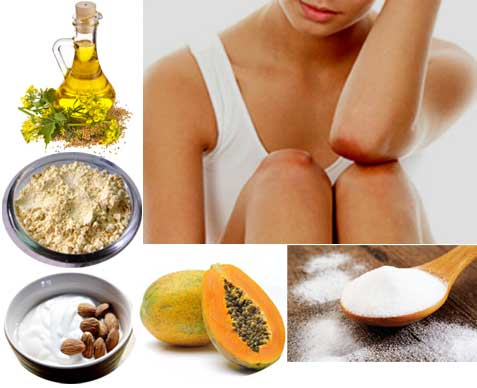 Dark Knees and Elbows can be Treated by Home Remedies