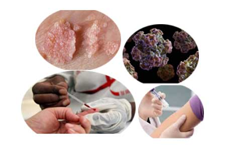 What is Human Papilloma Virus Infection