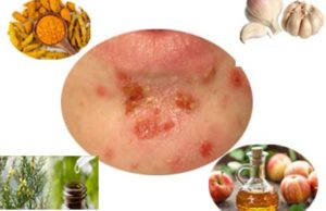 How to Reduce Impetigo