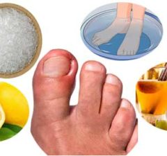 Ingrown Nails: Causes, Symptoms, Treatment and Home Remedies