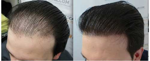 How to Management of Alopecia