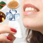 how to get rid of chin acne home remedies