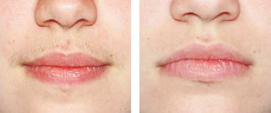 Homemade ways to get rid of upper lips hair