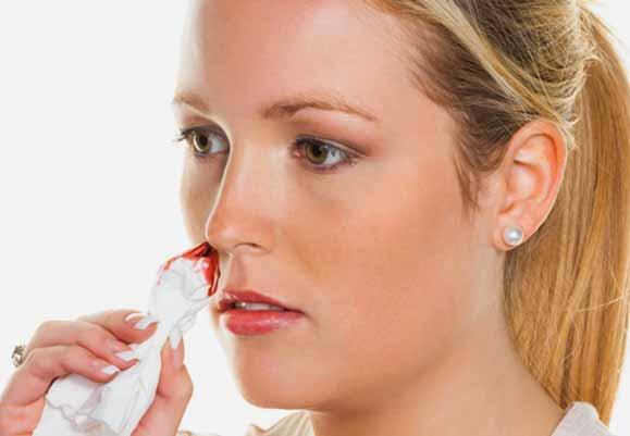 Nose bleeding