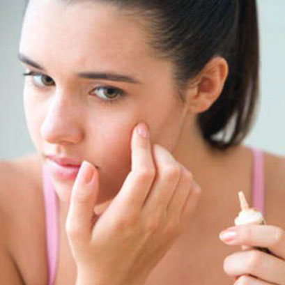 Best remedies to remove Acne Scars