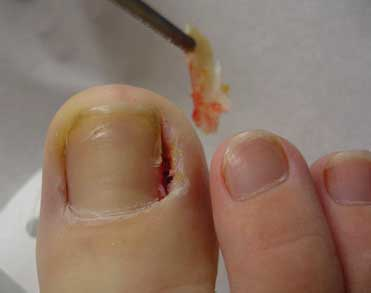removal of the ingrown nail and tissue