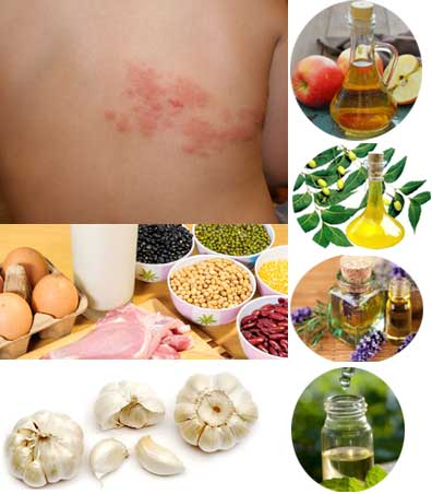 Shingles or Herpes Zoster and Home Remedies