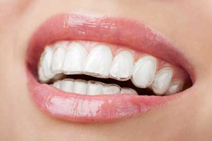 Straightening out your Teeth