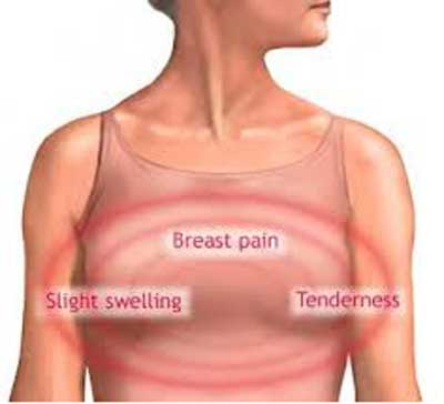 Symptoms of Fibrocystic Breast