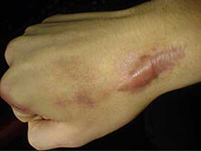 Symptoms of Keloid Scars