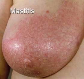 Symptoms of Lactation Mastitis