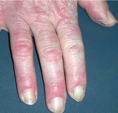 the symptoms of rheumatoid arthritis