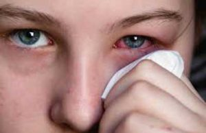 Cause of Viral Conjunctivitis