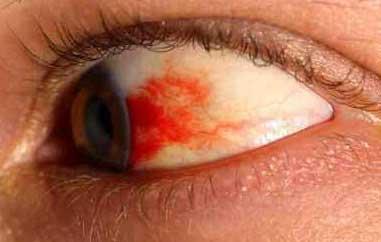 Treat Burst Blood Vessel in the Eye