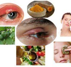 Home Remedies for Stye on Upper Eyelid