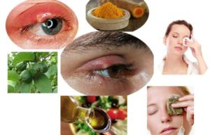 Home Remedies for Stye on Upper Eyelid
